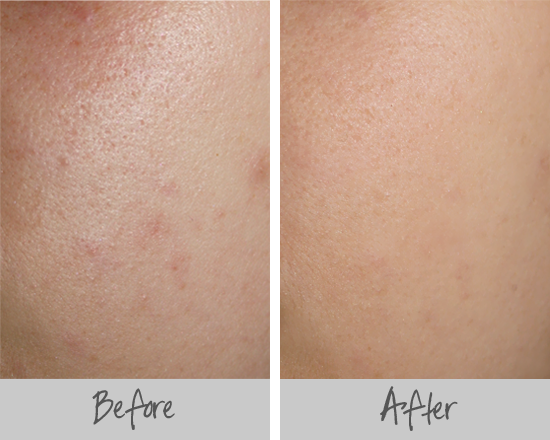 primer on skin before and after